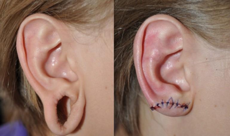Rekonstrukcja płatków usznych przed i po 2