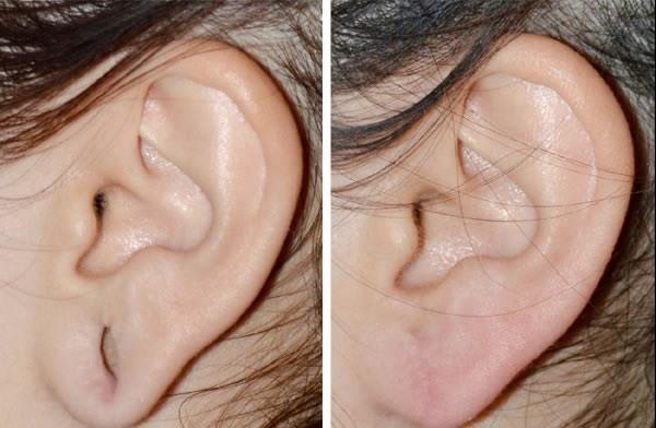 Rekonstrukcja płatków usznych przed i po 3