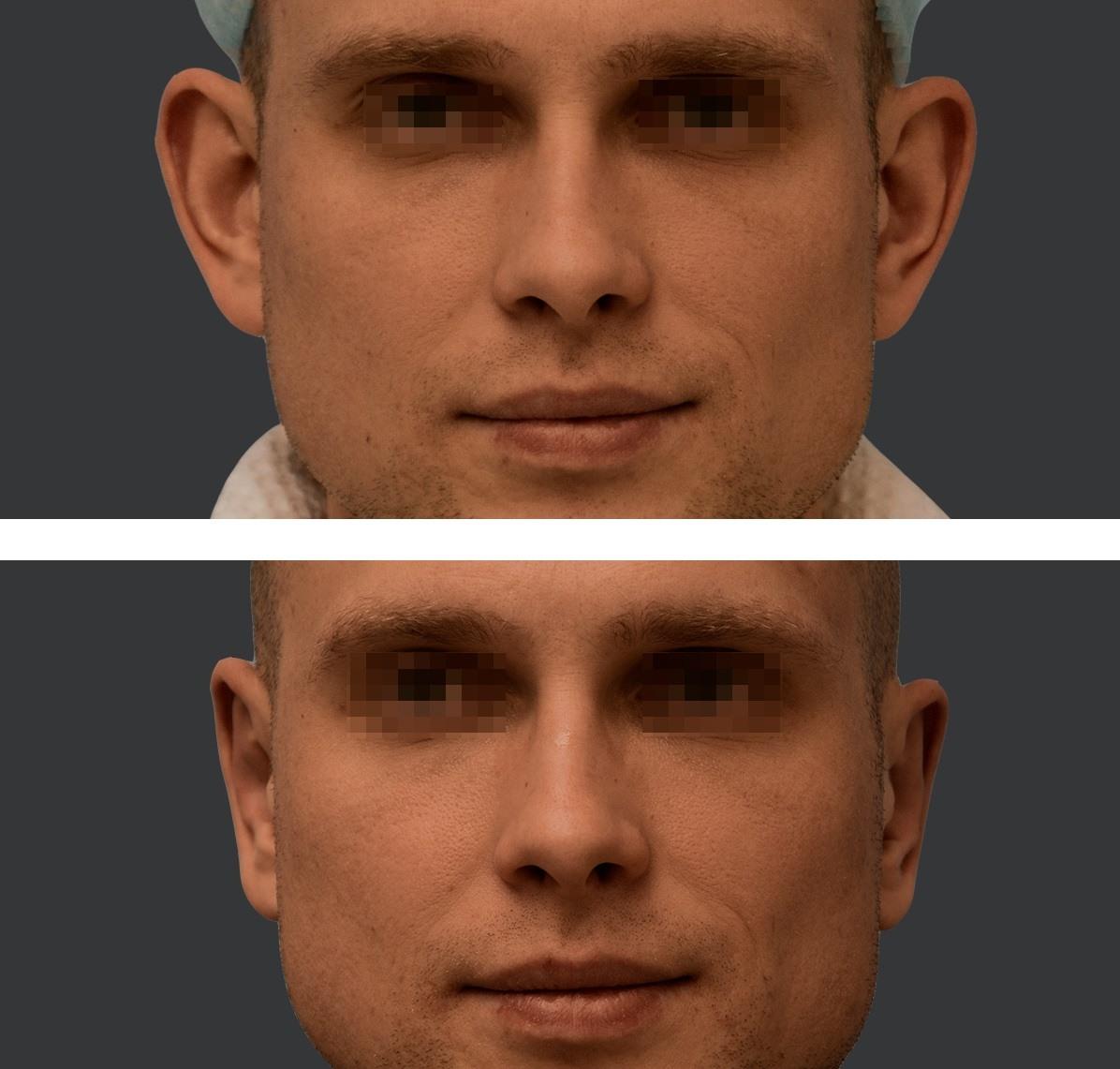 Efekt zabiegu odstających uszu trzeci