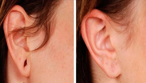 Rekonstrukcja płatków usznych przed i po 4