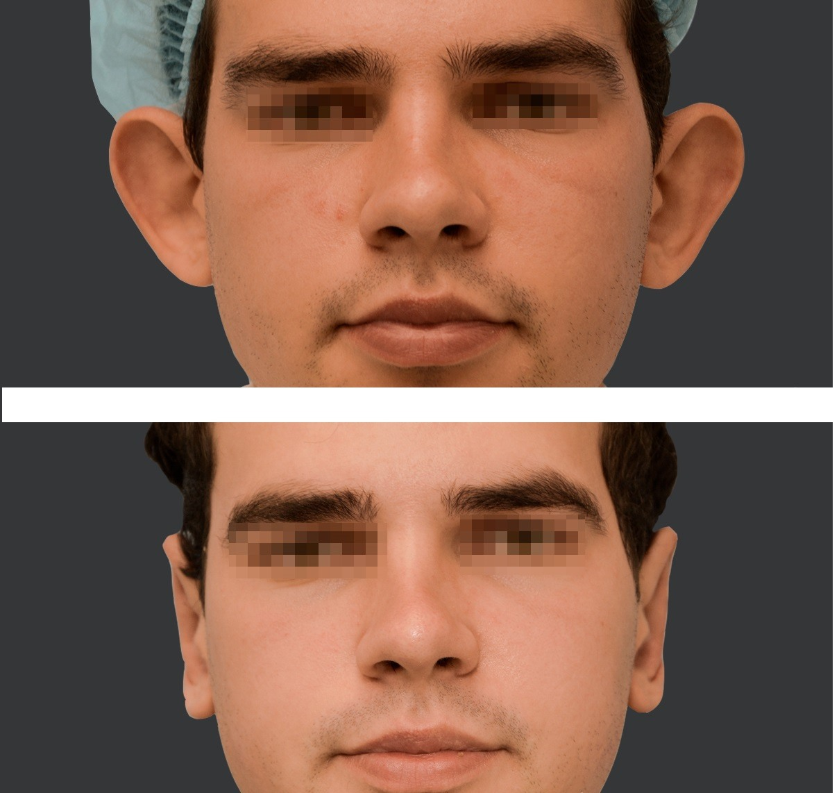 Efekt zabiegu odstających uszu czwarty